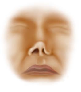 Nasal valve collapse symptoms
