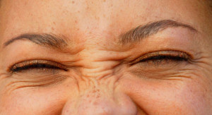 Botox for bunny lines