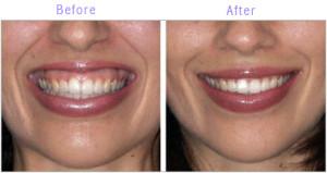Alternatives for Botox
