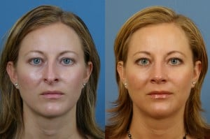 Rhinoplasty Consultation