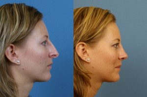 About Rhinoplasty Consultations
