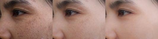 Acne Scars Stock Image Resized