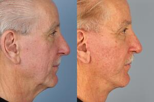 facelifts for men