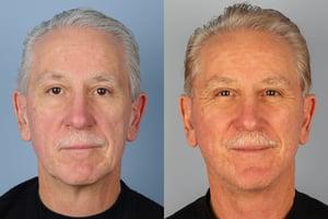 Facelifts for men