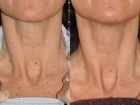 Before and AFter Diolite Laser