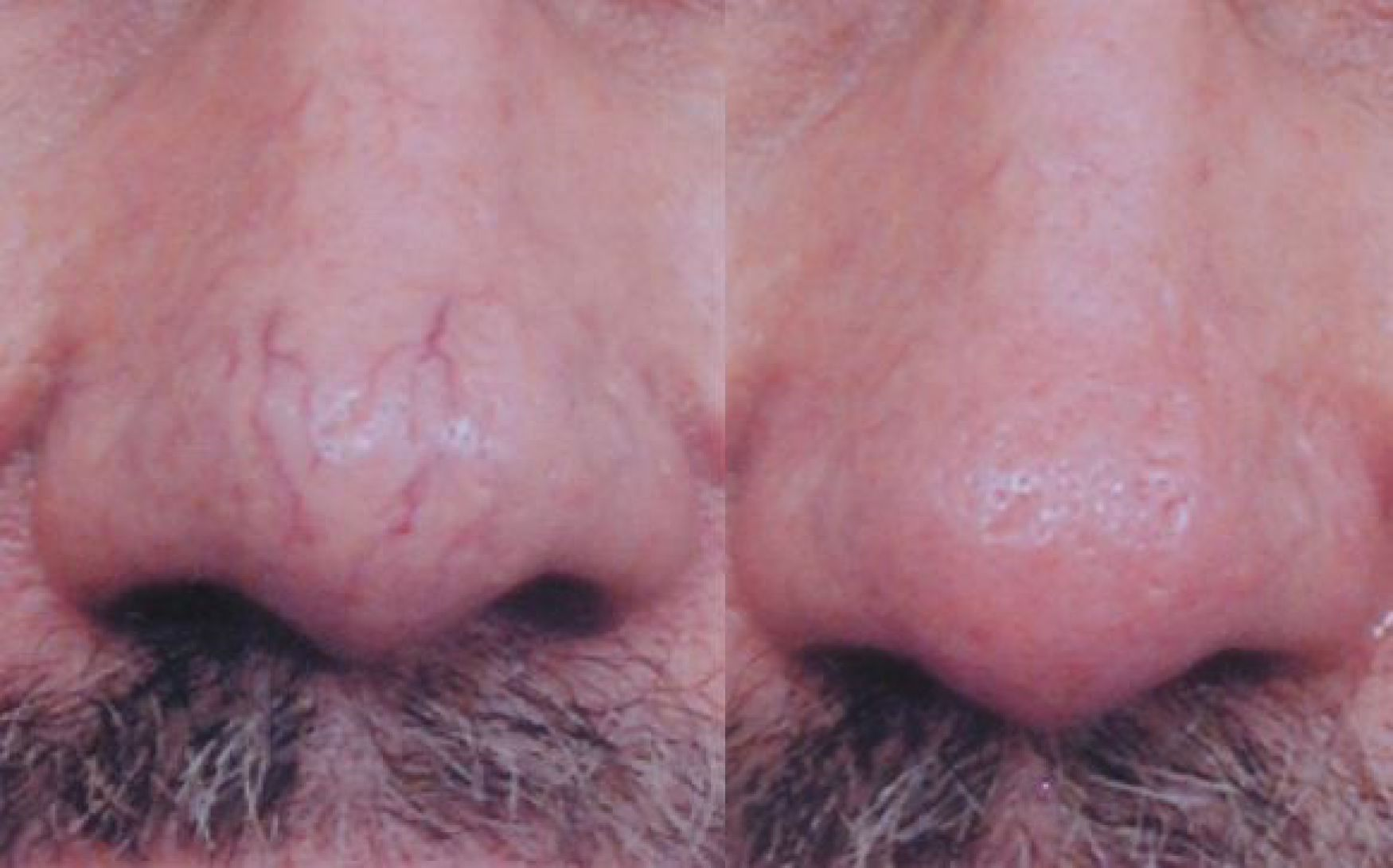 Before-After-Spider-Vein-Removal