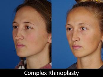 Complex Rhinoplasty