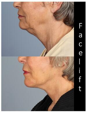 What should I expect from my deep plane facelift