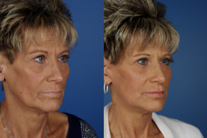 Facelifts using patients own blood