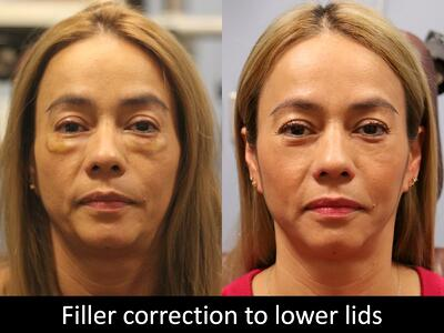 Filler Correction to lower lids raval 1