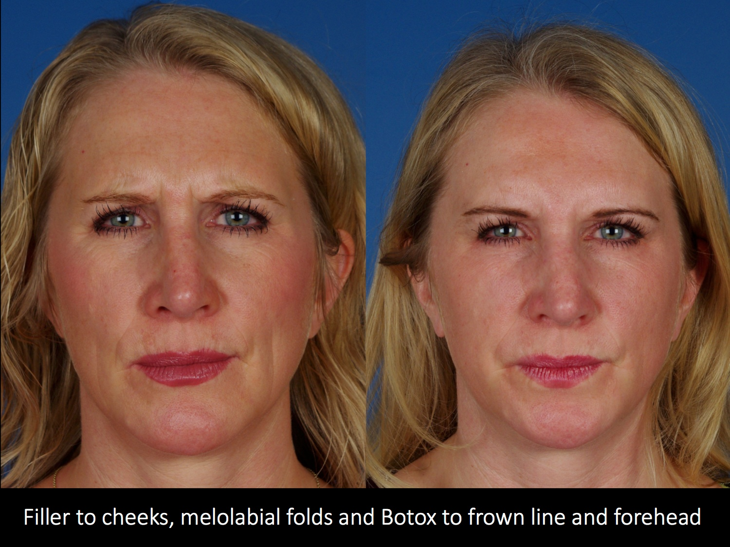 Filler to malars, MLF and botox to frown line and forehead1 copy