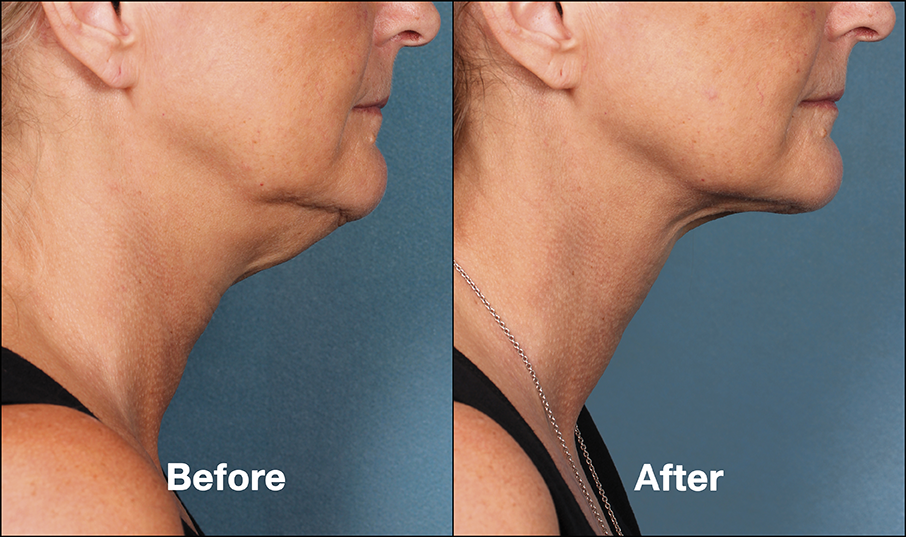 Kybella Skin Tightening Before and AFter