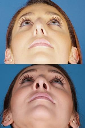 Nasal valve collapse repair