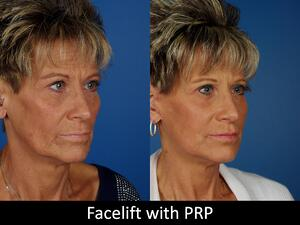 Facelifts with PRP