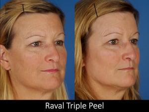 Raval Triple Peel 2