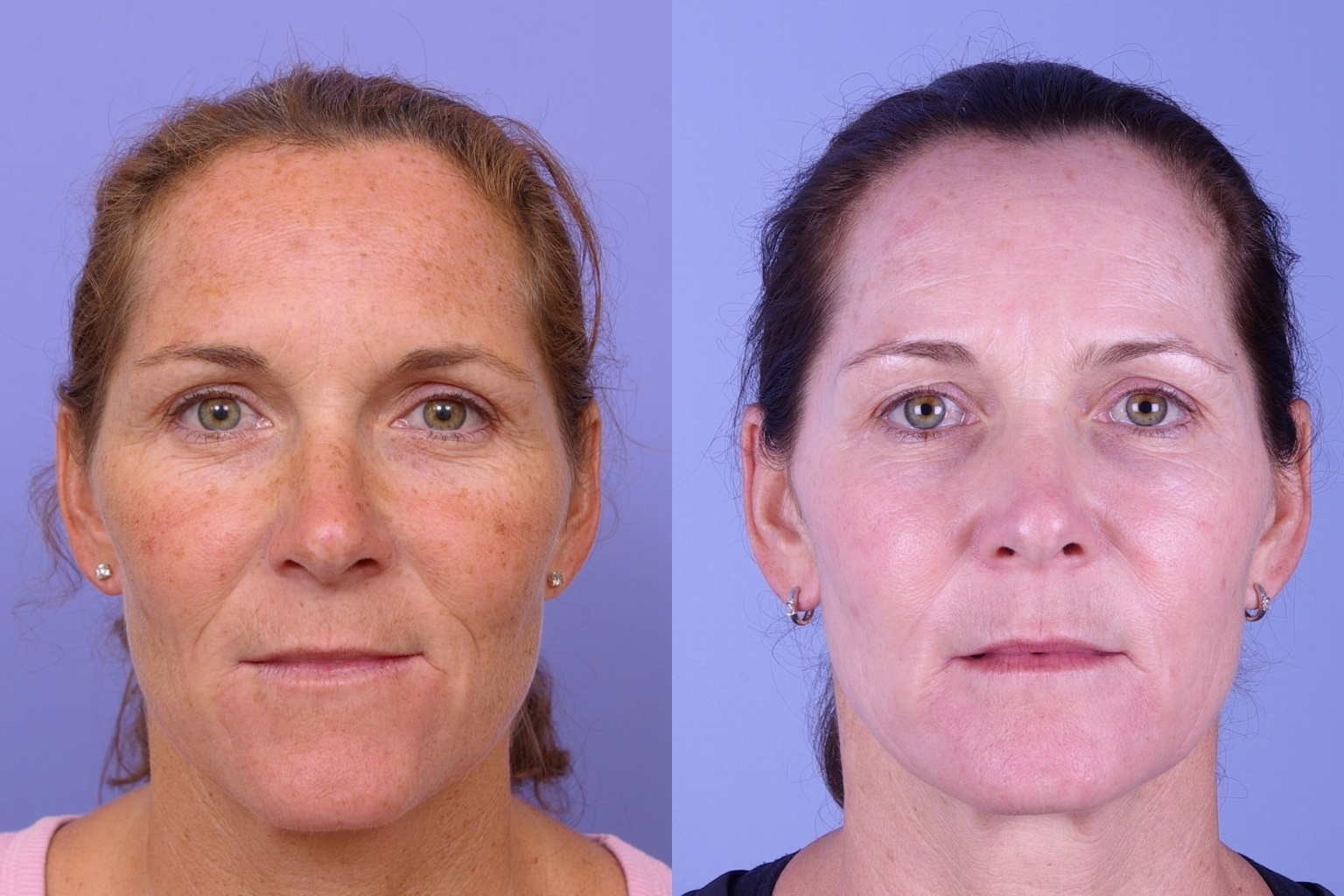 Botox before and afters