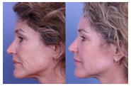 Botox and Filler before and after