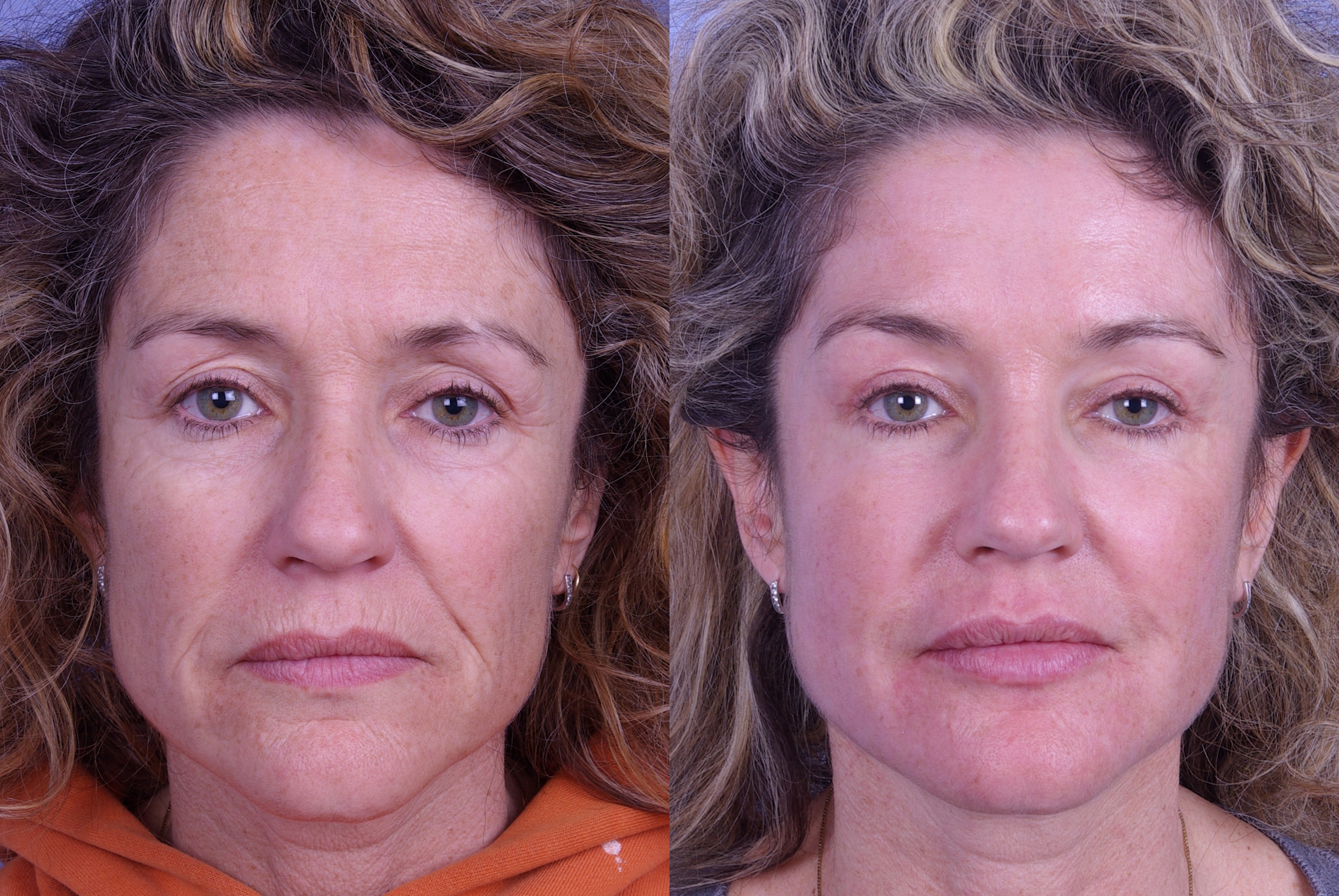 Raval Botox Treatment