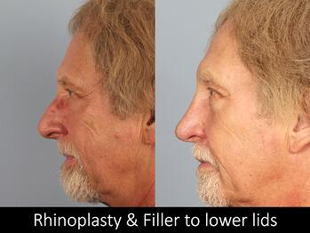 Rhinoplasty and filler