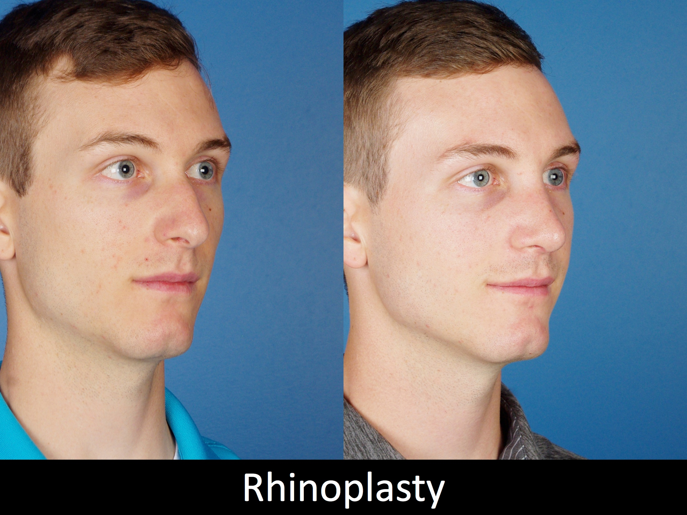 Rhinoplasty procedure Denver