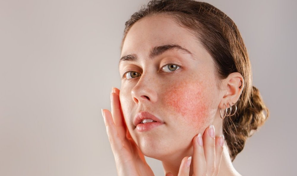 woman-concerned-about-rosacea