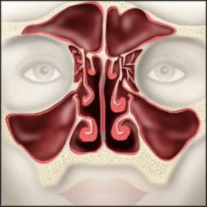 Nasal Valve Repair