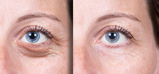 Laser Resurfacing for Under the Eyes Results Photo