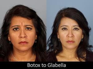 botox to glabella raval