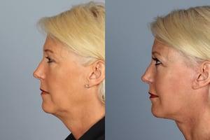 Raval Facial Aesthetics Facelift