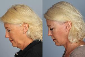 facelift recovery time