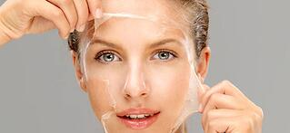 chemical peel effects