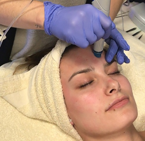 HydraFacial-treatment-500x482.jpg