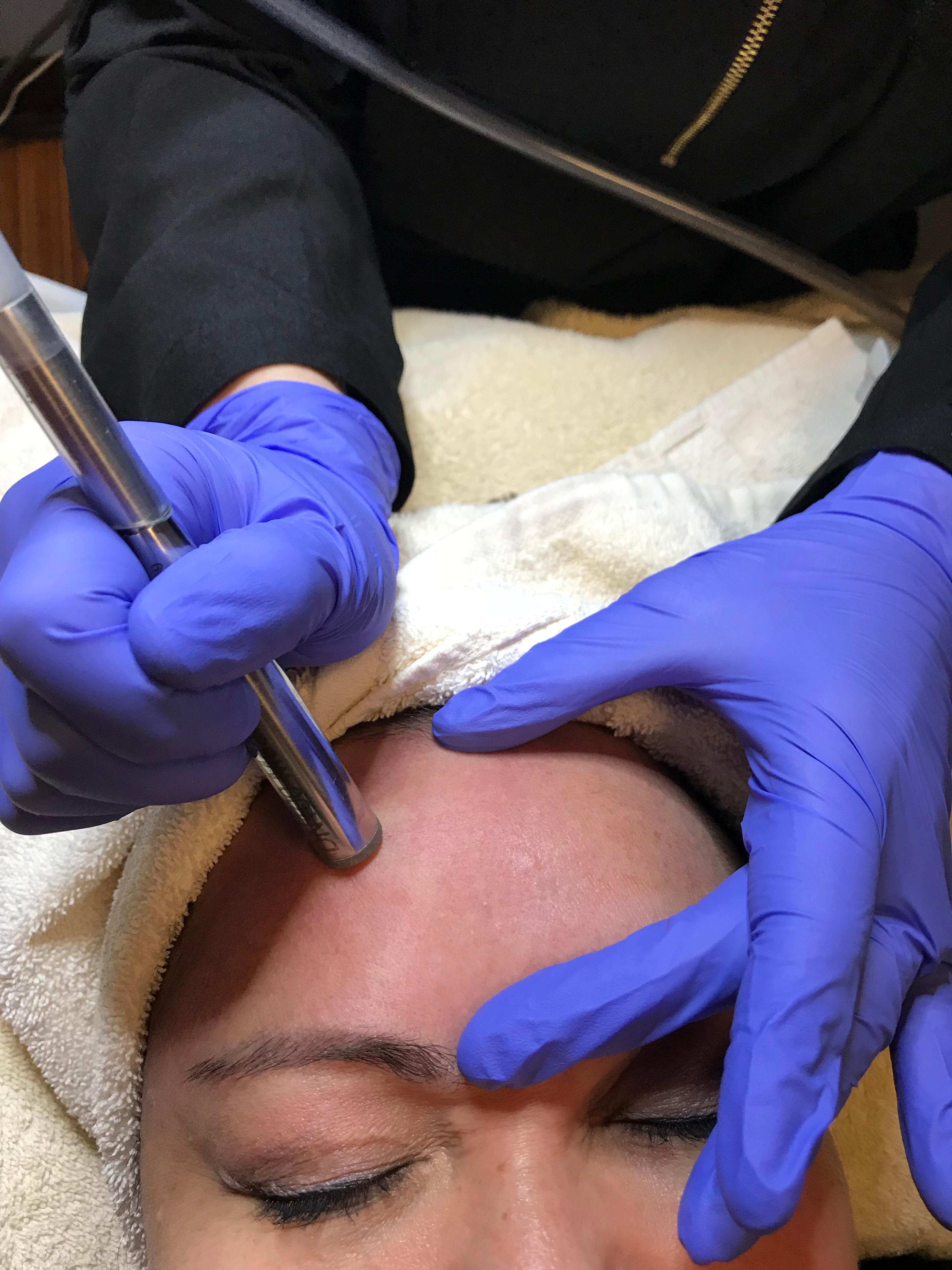 Microdermabrasion treatment.jpg