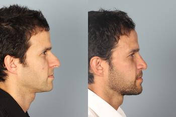 Rhinplasty before and after profile