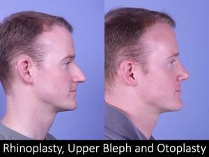 rhino, bleph, otoplasty Raval 3