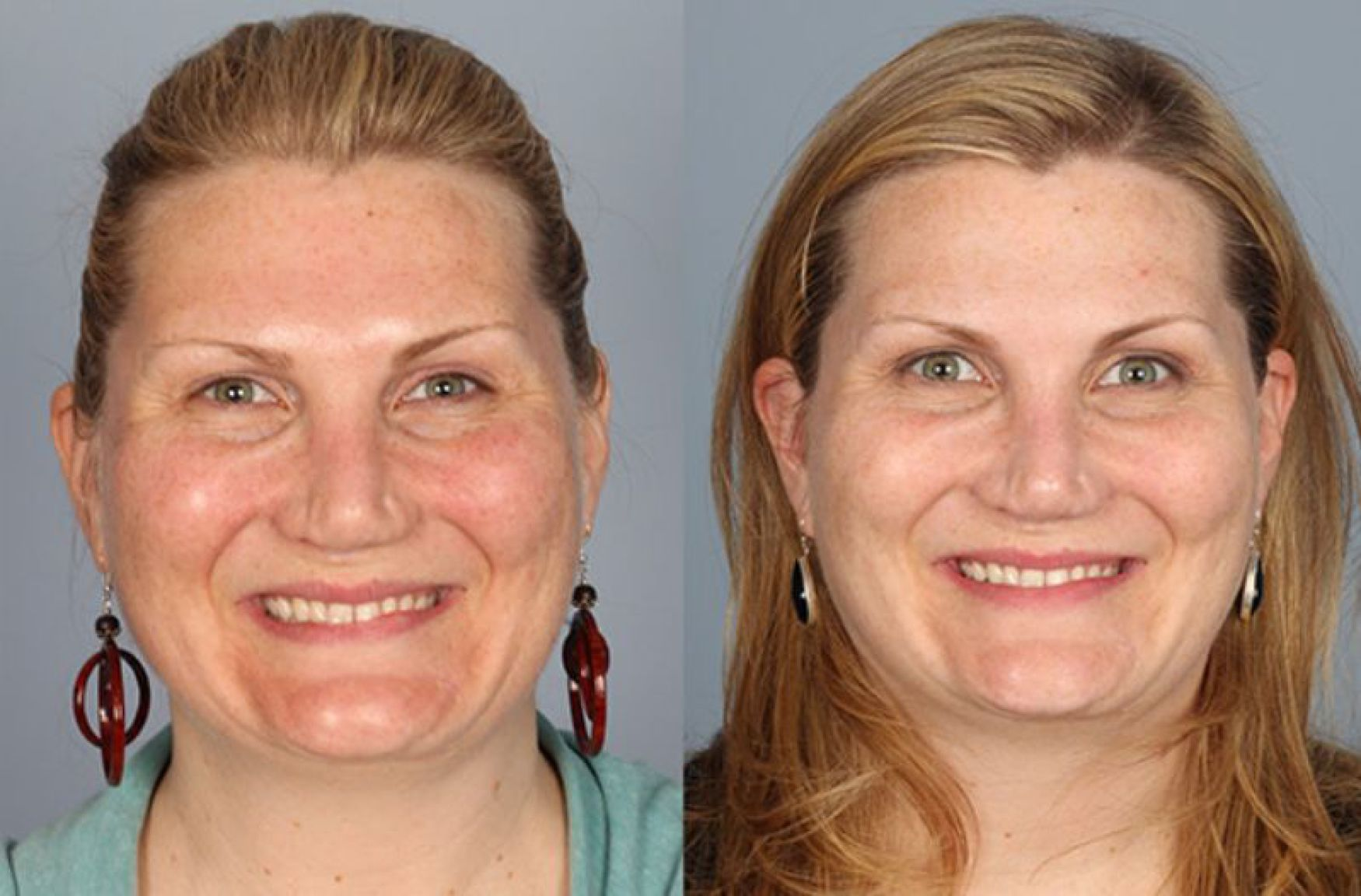 before and after example for laser skin treatments