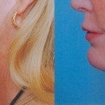 Cosmetic Lifts Before and After (1)