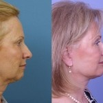 Cosmetic Lifts Before and After (10)