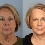 Cosmetic Lifts Before and After (11)
