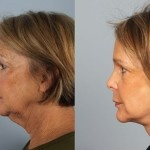 Cosmetic Lifts Before and After (12)