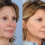 Cosmetic Lifts Before and After (13)