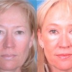 Cosmetic Lifts Before and After