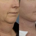 Cosmetic Lifts Before and After (2)