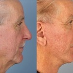 Cosmetic Lifts Before and After (4)