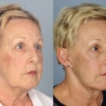 Cosmetic Lifts Before and After (6)