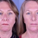 Cosmetic Lifts Before and After (7)
