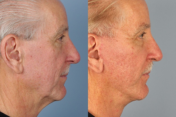 Rhinoplasty Before&After (18)