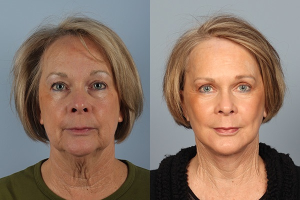 FAcelifts Before and After Photo Gallery