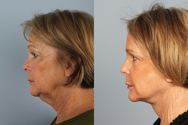 Rhinoplasty Before&After (15)