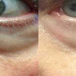 Rejuvapen Before and After (6)